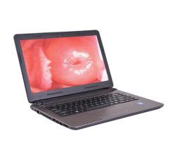 Computer portatile portatile di vendita caldo Colposcope/800, un video Colposcope dei 000 pixel per la vagina Mslec02-8