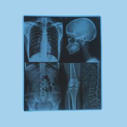 Pellicola medica del getto di inchiostro dell'animale domestico per l'uscita di immagine di radiologia