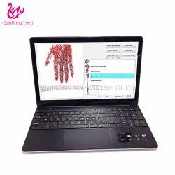 Jager 4025 van Meta Scanner van de Gezondheid Nls het de Niet-invasieve Kenmerkende Bioresonance en Apparaat van de Therapie van de Cel met Laptop