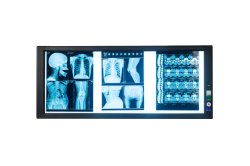 25mm LED fino de caixas de Exibição de raios X Lateral portátil iluminada LED Negatoscopio Triplo