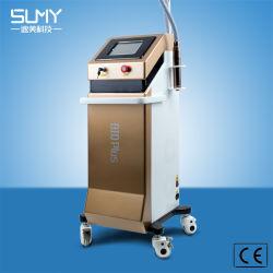 전문가 Q에 의하여 전환되는 ND YAG Laser 귀영나팔 제거 장치