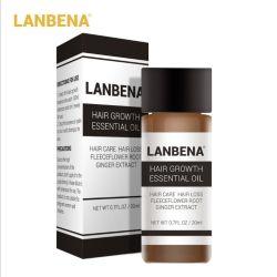 Le traitement de prévenir la perte des cheveux Soins des cheveux de l'huile
