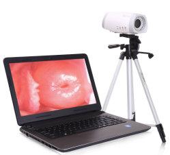 Mslce02 Draagbare Colposcope/800, 000 Pixel VideoColposcope voor Vagina