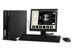 Ubm: 초음파 심상 워크 스테이션 안과학