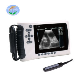 Scanner portatile approvato di ultrasuono del controllare del Ce