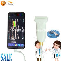 Горячая продажа USB ультразвуковой системы 11МГЦ цветового доплера линейным датчиком