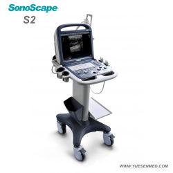 Ultrasuono portatile di Doppler di colore del controllare veterinario medico dell'ospedale di S2V Sonoscape