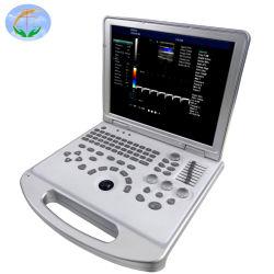 De Apparatuur van het Systeem van de Diagnose van de Ultrasone klank van het Ziekenhuis van Doppler van de LEIDENE Kleur van de Vertoning