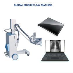 Het fundamentele ModelSysteem van de Radiografie van de Röntgenstraal van het vlak-Paneel van de Hoge Frequentie fM-05100c Mobiele Digitale