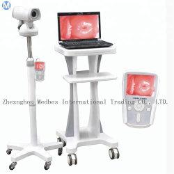 Les appareils électroniques portables numérique Full HD de la caméra vidéo Colposcope de gynécologie