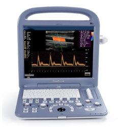 CE scanner à ultrasons portable homologué avec convexes et sondes transvaginal