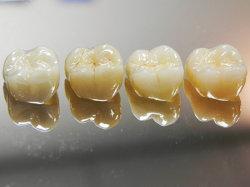 El girasol de porcelana de laboratorio dental fusionado a coronas de zirconio y puente