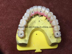 Tout-SUR-6 plein Contour pont supérieur de zircone Implant dentaire