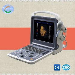 4D portátil digital completo escáner de ultrasonido Doppler Color Vaginal Yj-U60plus