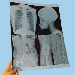 8X10 A3 A4ペット放射線学210umの青いインクジェット医学のX線フィルム