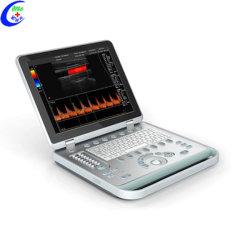 MC-Du-C5 15인치 LED 스크린 노트북 컬러 도플러 초음파