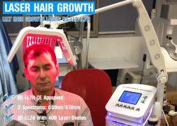 400개의 실제적인 다이오드 빨간불 대중적인 머리 재성장 Laser 기계 650nm 다이오드 Laser 없음