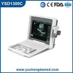 Ysd1300c Digital de Alta Calidad ecógrafo portátil