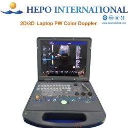 스페인어 의료 디지털 노트북 컬러 도플러 초음파(HP-UC600)