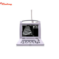病院の医学診断装置の携帯用超音波のスキャンナー
