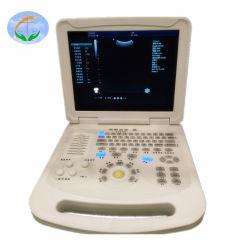 CE ISO가 있는 의료용 기기 컬러 도플러 휴대용 초음파 스캐너