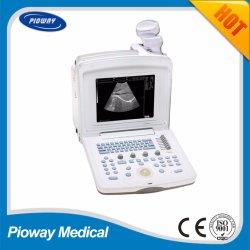 Laptop Scanner van de Apparatuur van de Ultrasone klank de Draagbare Ultrasone (pw-180)
