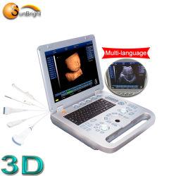 Портативный ультразвуковой диагностики машины 3D сканирование плода OB ультразвукового оборудования