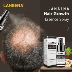 Das ursprüngliche Lanbena Haar-Wachstum-Wesentlich-Spray-Produkt, welches die Kahlheit vereinigt Antihaar-Verlust verhindert, ernähren die Wurzeln, die einfach sind, Haar-Sorgfalt zu tragen