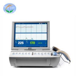 FM-V2.6 draagbare foetale monitor voor meting van de hartfrequentie van medische apparatuur