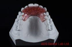 Dispositivo de expansión de la retención de servicio completo laboratorio dental ortodoncia