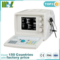 Mslod21S a/b à ultrasons Scanner pour l'ophtalmologie, de médecine de l'Ophtalmologie ultrasons