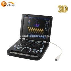 Портативный ноутбук 3D 4D цветового доплера ультразвуковой системы машина Tdi эхо устройства