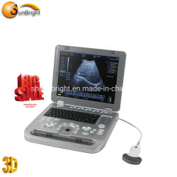 15インチの専門の超音波のラップトップの携帯用3D超音波装置