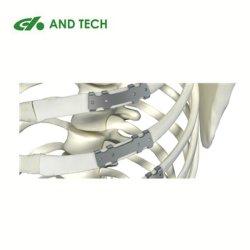 Cheast Bruch-Titanrippen-Platte mit Instrument-minimal invasivem Implantat