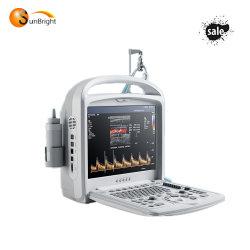 Windows- Xpsystems-Qualitäts-Farben-Doppler-2D fötaler Ultraschall-Scanner-Maschinen-Preis