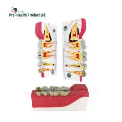 Sagital dental Diente seccionadas en la parte inferior derecha posterior descomposición del tejido del modelo de dientes humanos anatómica