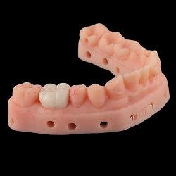[سوبر-هي] شفّانيّة زركونيوم تاج, إمداد تموين أسنانيّة, تاج أسنانيّة, تجهيز, طقم أسنان, لتقويم الأسنان, نسيج مزدرع أسنانيّة منتوجات من الصين مختبرة أسنانيّة