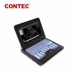 Contec Cms600p2 bewegliche Digital Ultraschall-Scanner-Maschinen-medizinische Ausrüstung