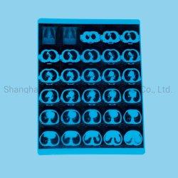 Medizinischer CT-Röntgenstrahl-Film FUJI-Film