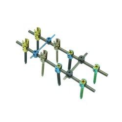 Konkurrenzfähiger Preis-orthopädische chirurgische Implantate spinale Pedicle Titanschraube für Dorn-Chirurgie
