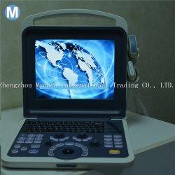 Sistema de imágenes de ultrasonido digital