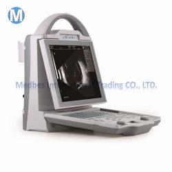 Ordinateur portable haut de la vente Ophthalmic Ab échographie en mode d'équipement,