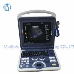 Equipamentos de diagnóstico hospitalar 4D portátil scanner de ultra-sonografia Doppler em cores M-K2