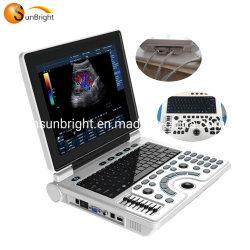 De grote Laptop van het Ziekenhuis van de Echo van de Korting Ce Goedgekeurde 2D Machine van de Ultrasone klank