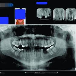 Weißer medizinischer trockener Film der 150 Mikron-Größen-A4 und A3 für zahnmedizinisches