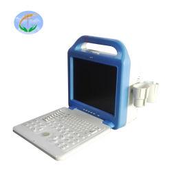 Ordinateur portable d'instruments médicaux en noir et blanc du scanner à ultrasons