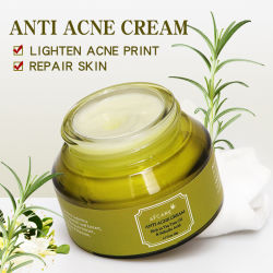 Árbol de Té Crema de cara Anti-Acne Oil Control reducir poros Crema de acné cicatriz acné blanqueamiento nutren retirar la crema facial Skin Care