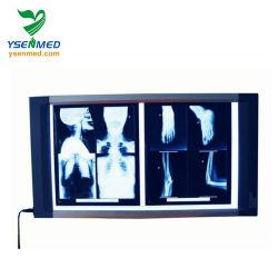 La radiografía médica Ysx1705 LED doble Visor de película de rayos X