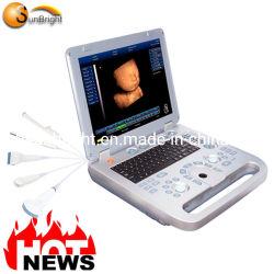 Cheapest Portable gratuitement 3D Les dispositifs de diagnostic à ultrasons pour la grossesse