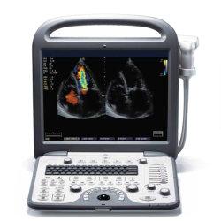"""Macchina cardiovascolare di ultrasuono di Dopppler 15 """" di colore portatile completo dell'affissione a cristalli liquidi 4D"""